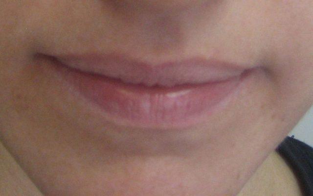 הגדלה ועיצוב שפתיים 3