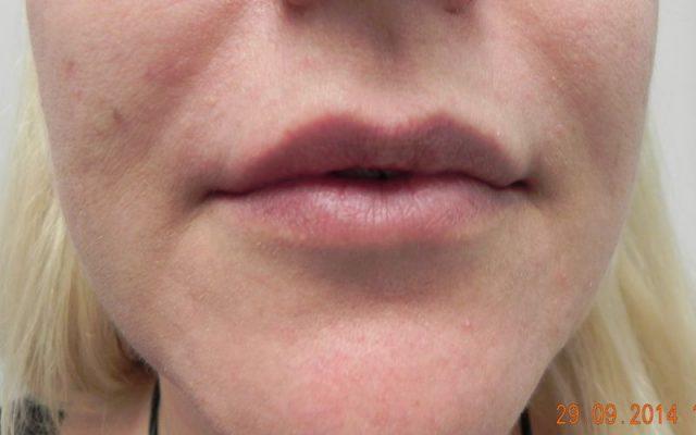 הגדלה ועיצוב שפתיים 10
