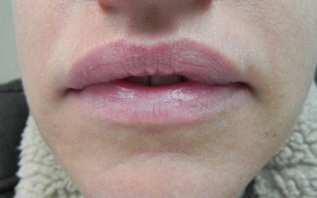 הגדלה ועיצוב שפתיים 5