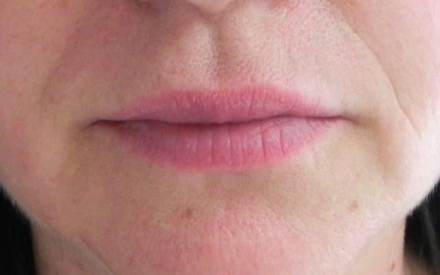 הגדלה ועיצוב שפתיים 7