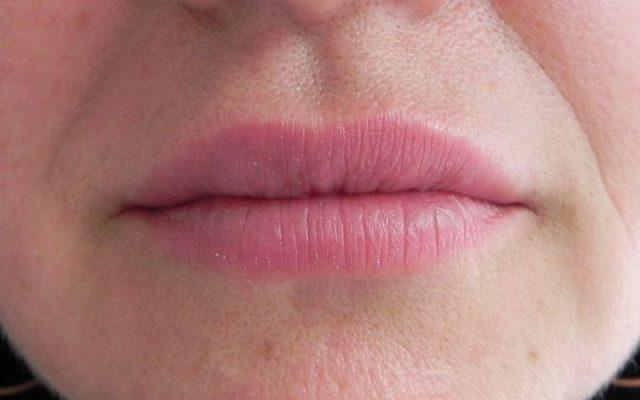 הגדלה ועיצוב שפתיים 8