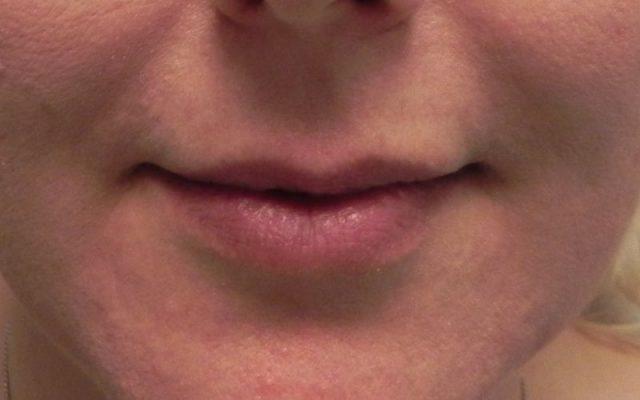 הגדלה ועיצוב שפתיים 9