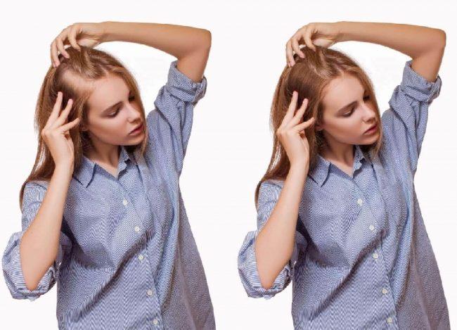 אישה לפני ואחרי טיפול השתלת שיער סינטטי