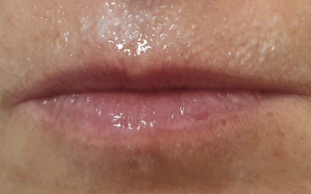 הגדלה ועיצוב שפתיים 1