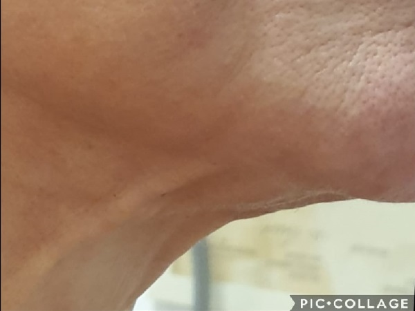 מתיחת צוואר ללא ניתוח 2