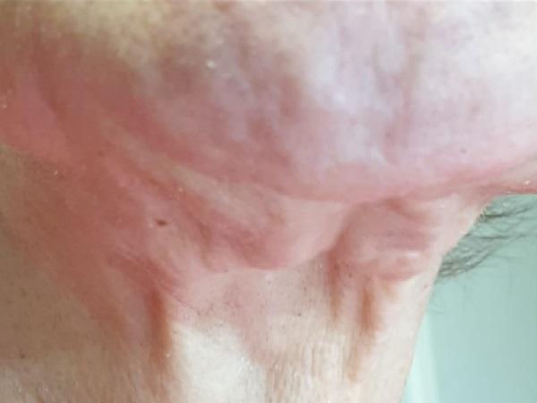 מתיחת צוואר ללא ניתוח 1