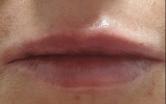הגדלה ועיצוב שפתיים 2