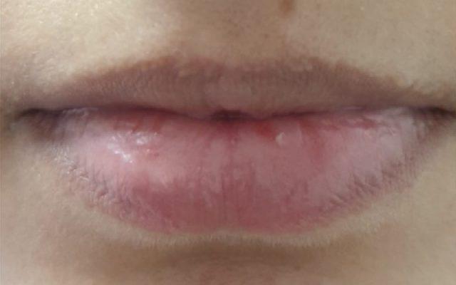 הגדלה ועיצוב שפתיים 11