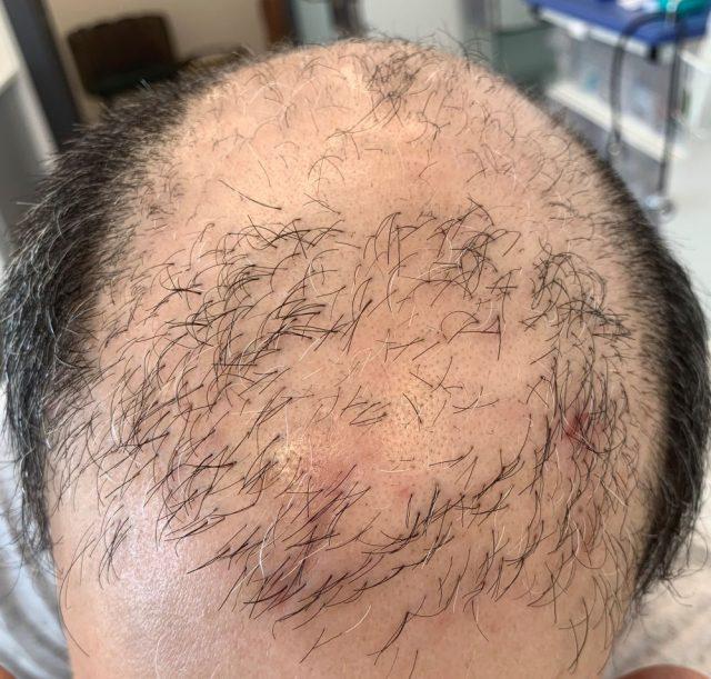 קרקפת מקריחה עם שיער דליל במיוחד לפני השתלת שיער בשיטת Biofiber