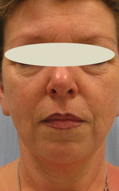 העלמת קמטים מתחת לעיניים ללא ניתוח 1
