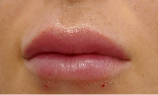 הגדלה ועיצוב שפתיים 14