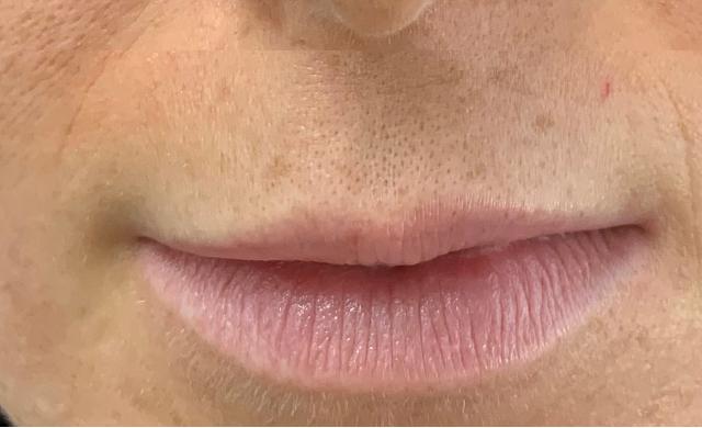הגדלה ועיצוב שפתיים 13