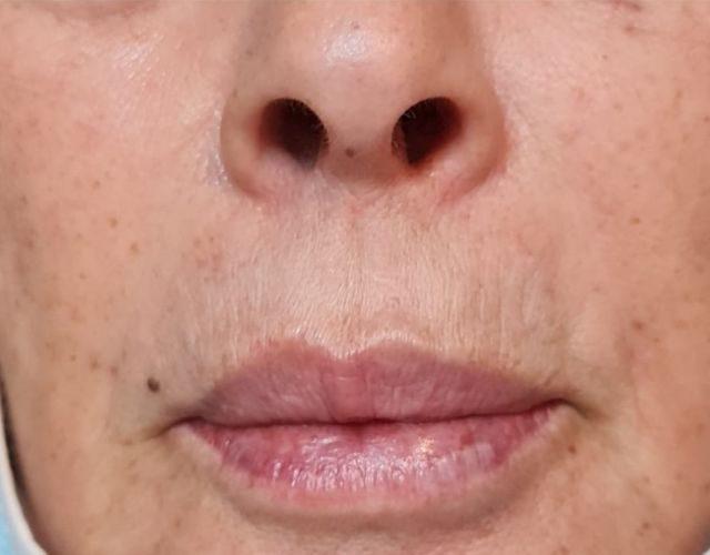 מילוי קמטים בצידי הפה ומעל השפה 2