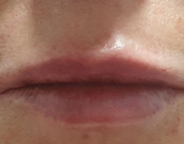 הגדלה ועיצוב שפתיים 20