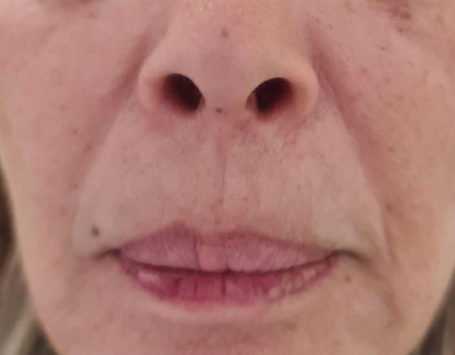 מילוי קמטים בצידי הפה ומעל השפה 1