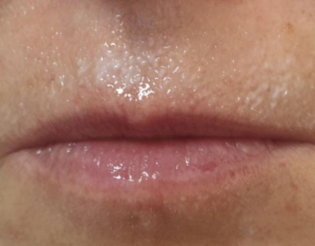 הגדלה ועיצוב שפתיים 19